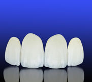 Metal free ceramic dental crowns Stock Photography