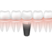 Metal tooth implant Royalty Free Stock Image