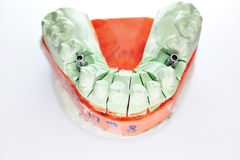 Metallic insertion in dental prosthesis Stock Image