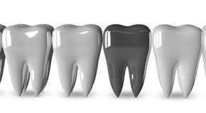 Metallic tooth and white ones Stock Photography