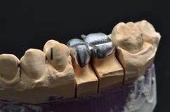 Metalliska tandmodellimplantat Royaltyfria Bilder