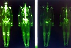 Metastases för prostatacancer Royaltyfria Bilder