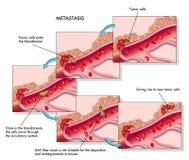Metastasis vector illustration