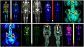 Metastasis för prostatacancer Royaltyfri Bild