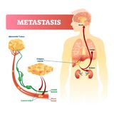 Metastasis vector illustration. Primary cancer and tumor labeled diagram. vector illustration