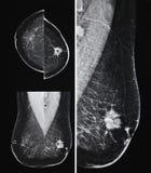 Metastatic рак молочной железы, маммография Стоковые Изображения