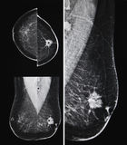 Metastatic bröstcancer, mammography Arkivbilder