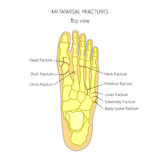 Metatarsal fractures. Illustration (diagram) of Metatarsal fracture types Stock Images