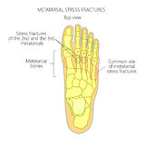 Metatarsal Stress fractures. Illustration (Diagram) of Metatarsal Stress fractures in the foot Stock Image