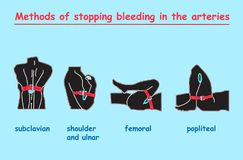 Methods of stopping bleeding in the arteries black body.  info graphic. Methods of stopping bleeding in the arteries black body. education  info graphic Stock Images
