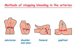 Methods of stopping bleeding in the arteries.  info graphic. Illustration Royalty Free Stock Photos