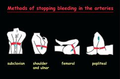 Methods of stopping bleeding in the arteries white body on black background .  Education  info graphic. Methods of stopping bleeding in the arteries white body Stock Photography