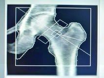 Miękki i rozmyty wizerunek: specjalnego egzaminacyjnego medycznego wizerunku kości modna gęstość na białym tle - fotografia royalty free
