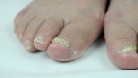 Micosi dei chiodi dei piedi della nonna anziana stock footage