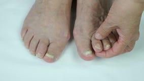 Micosi sui chiodi del piede della persona video d archivio