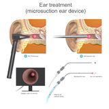 The Micro suction ear device it is vacuum working system.Doctor. The Micro suction ear device it is vacuum working system. Doctors use air vacuum pump to suction royalty free illustration