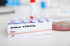 Micro tubes with  Blood sample positive with Zika virus Stock Images