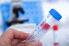 Micro tubes with  Blood sample positive with Zika virus Stock Photo
