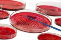 MICROBIOLOGIA DI INOCULAZIONE Fotografia Stock Libera da Diritti