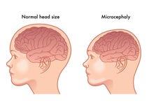Microcefalia royalty illustrazione gratis