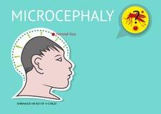 A microcefalia ou a exiguidade anormal da cabeça ligaram ao vírus de Zika ilustração royalty free