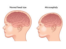Microcephaly Stock Image