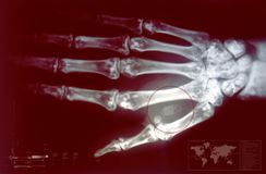 Microchip Hand Implant. A human microchip implant is typically an identifying integrated circuit device or RFID transponder encased in silicate glass and stock photography
