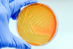 Micrococcus luteus. Gram-positive, to Gram-variable, nonmotile, Coccus, saprotrophic bacterium that belongs to the family Micrococcaceae Stock Photo