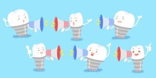 Microfone da tomada do implante do dente dos desenhos animados Fotos de Stock