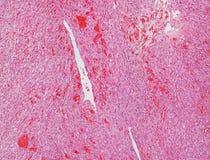 Micrográfo del angiosarcoma fotos de archivo libres de regalías