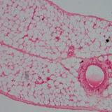 Micrograaf van bloedvat, slagader royalty-vrije stock afbeeldingen