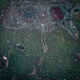 Micrografia do tecido do fígado Imagem de Stock Royalty Free
