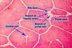 Micrografia leve de um fígado Foto de Stock Royalty Free