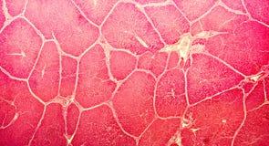 Micrografia leve de um fígado Imagem de Stock