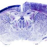 Micrograph of rat brain Stock Image