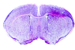 Micrograph of rat brain Stock Photos