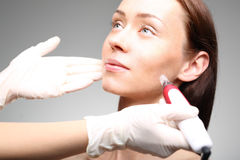 Microneedle mesotherapy Stock Photography
