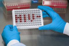 Microplate for ELISA with HIV abbreviation Stock Image