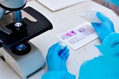 Microscoop Microbiologisch laboratorium Vorm en schimmelculturen Bacterieel onderzoek microbiology stock foto's
