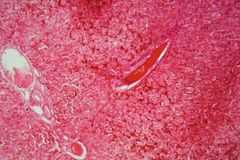 Liver cells under the microscope. Microscope photo of a section through a pig liver stock images