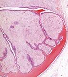 Microscope picture of breast fibroadenoma Stock Images
