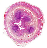 Microscope picture of human appendix Stock Photos