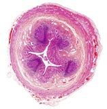 Microscope picture of human appendix Stock Photos