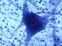 Microscopic Neuron Royalty Free Stock Image