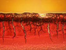 Microscopic Picture of a blood clot. Picture os a drying blood clot taken from a wound scap. Fibrin and fibronectin cross-link together and form a plug that Stock Photos