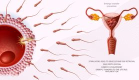 Microscopic Sperm Cells Around of Human Egg Banner. Embryo Transfer Procedure Medical Banner. Female Fertility. Reproduction. Microscopic Sperm Cells Around of royalty free illustration