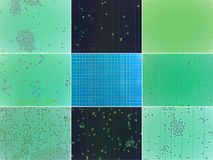 Microscopic yeast collage. Collage of nine microscopic views of yeasts Stock Photos