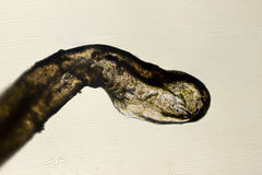 Microscopio 100x de la raíz del pelo humano Imagenes de archivo