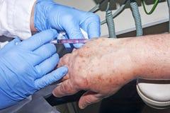 Microsurgery: Доктор дерматолога выполняет местную наркотизацию в руке Стоковое фото RF