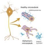 Microtubules de desintegración en la enfermedad de Alzheimer Fotos de archivo libres de regalías